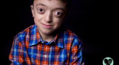 i-photograph-children-with-rare-diseases-to-encourage-people-to-look-beyond-their-condition__880