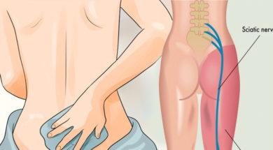 6-remedies-for-sciatica-pain-need-try-putting-another-painkiller-mouth