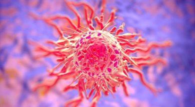 komorka-nowotworowa-1