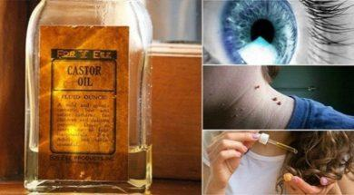 12-GREAT-USES-OF-CASTOR-OIL-YOU-DIDN'T-KNOW-BEFORE