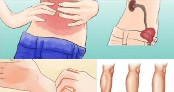 8 sygnałów, które wysyła Ci organizm, gdy Twoje nerki są w niebezpieczeństwie