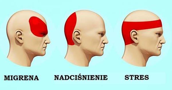 Oto jak skutecznie pozbyć się bólu głowy w zaledwie 5 minut. Tabletki nie będą już potrzebne