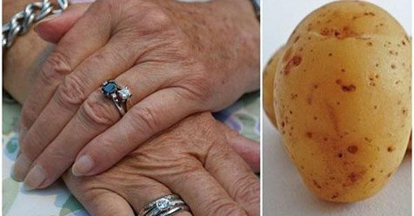 Obłóż dłonie maseczką z ziemniaków, mleka i żółtka, a odmłodzisz swoją skórę.