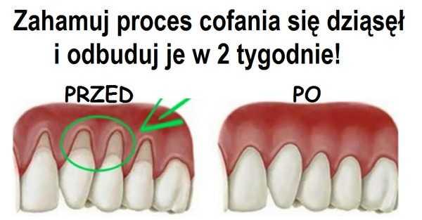 Zahamuj proces cofania się dziąseł i odbuduj je w 2 tygodnie stosując naturalne preparaty.