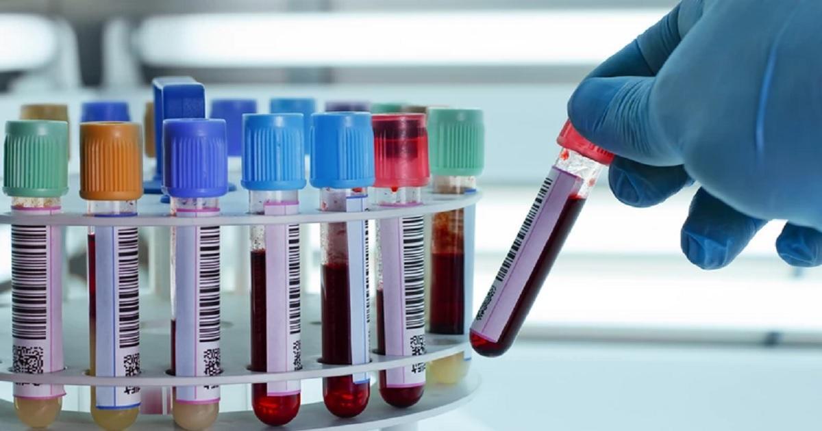 Najnowsze doniesienia naukowców. Grupa krwi może wpływać na przebieg COVID-19.