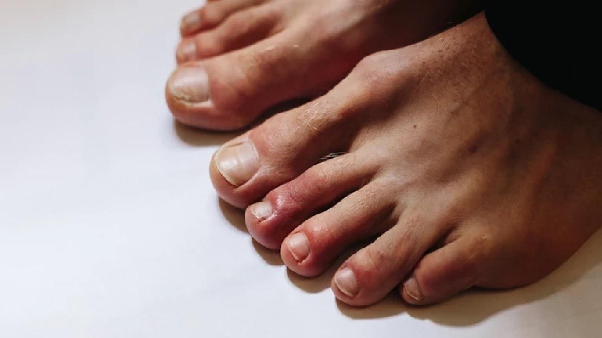 """""""Covidowe palce"""" mogą być długotrwałym objawem zakażenia koronawirusem"""