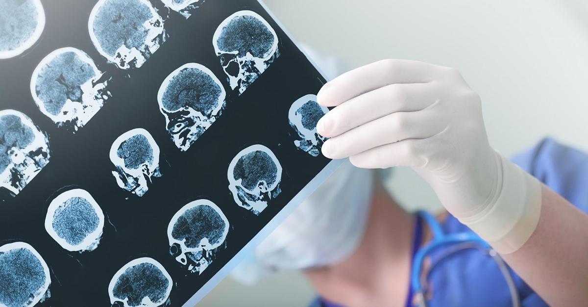 Zbadano mózgi osób, które zmarły na COVID-19. Połowa z nich była uszkodzona.