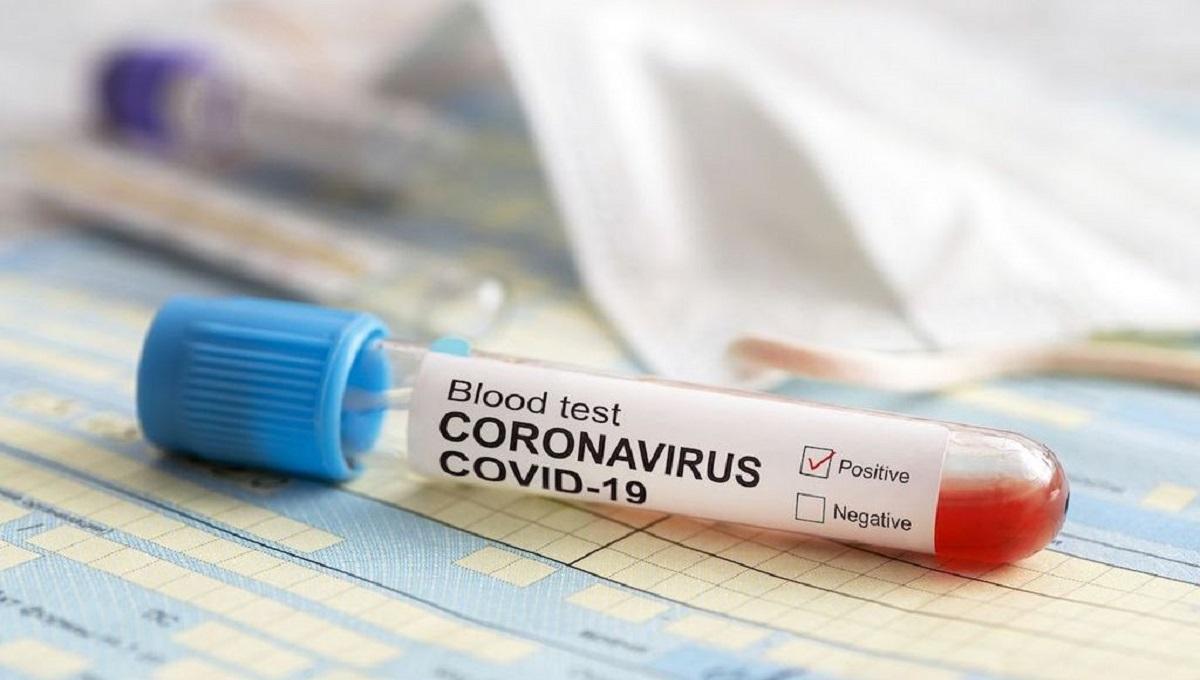 """Potencjalny lek na koronawirusa pochodzi z… rośliny. """"Skuteczność setki razy większa niż w przypadku innych leków stosowanych na COVID"""""""
