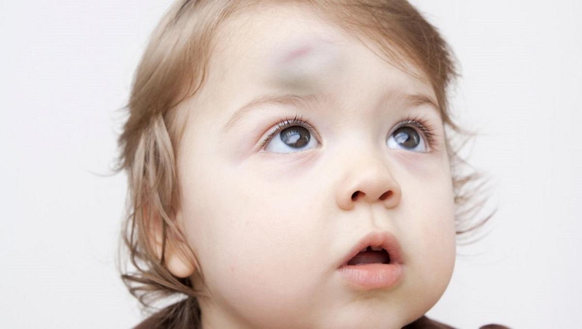 2-letni chłopczyk pobity. Obok leżała jego naga matka